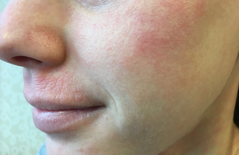 face with atopic dermatitis before the application of Protopic ointment