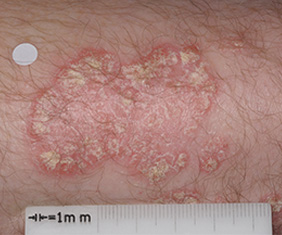 Close-up image of patient's arm at baseline