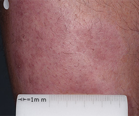 Close-up image of patient's leg at week 4