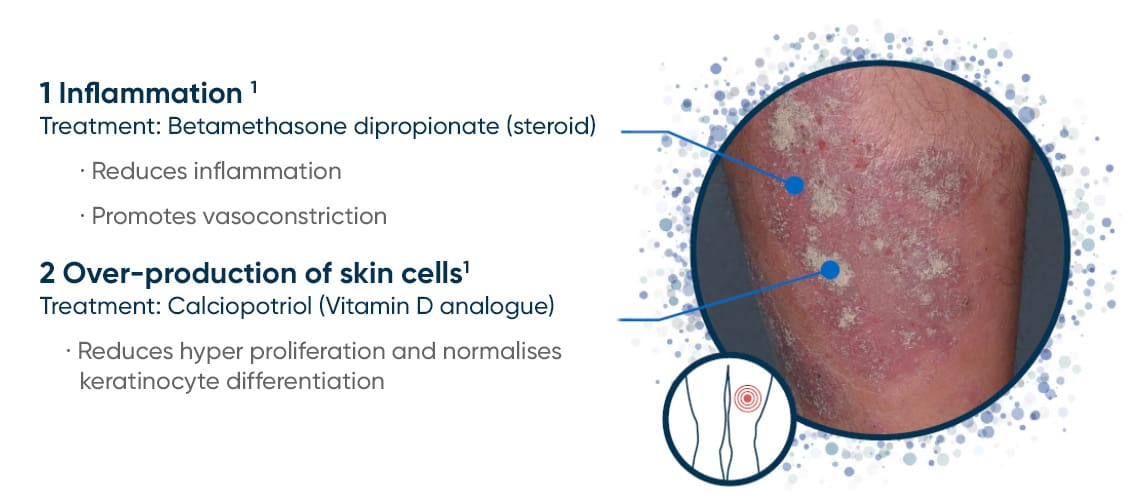 Diagram showing aspects of plaque psoriasis